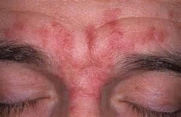 Лечение себорейного дерматита на лице и волосистой части головы народными средствами, шампунями и мазями