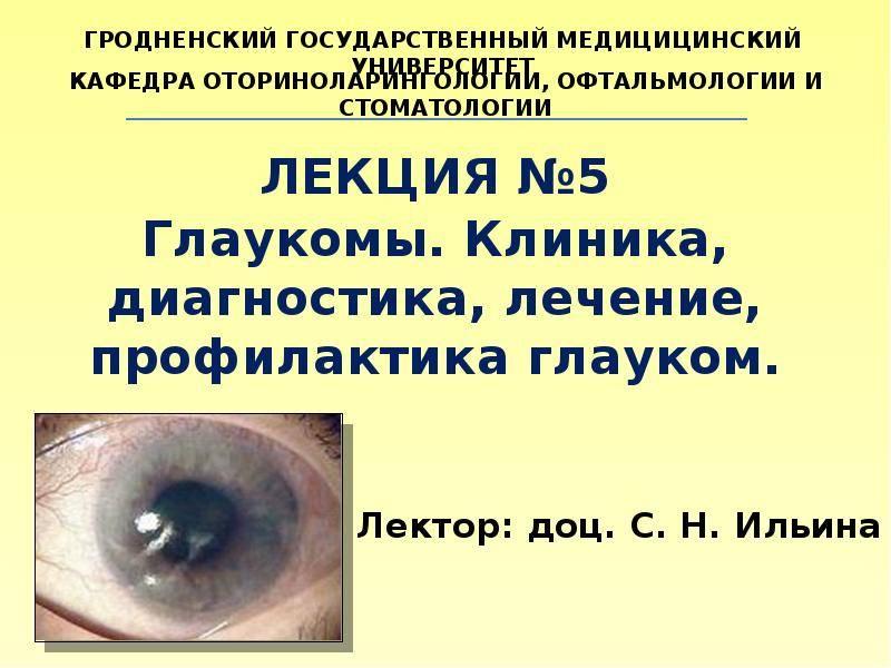 как предотвратить глаукому глаз