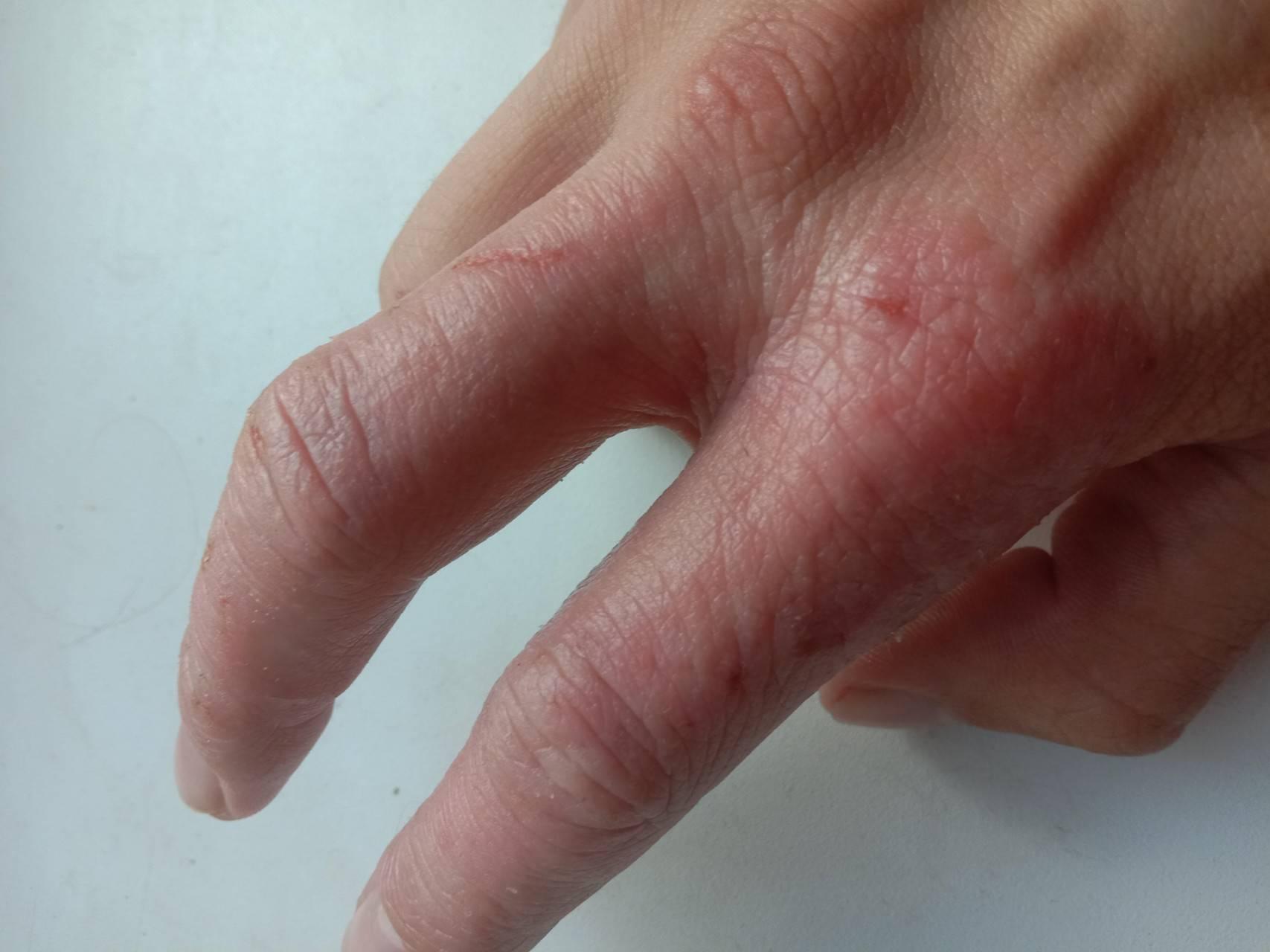 атопический дерматит пальцев