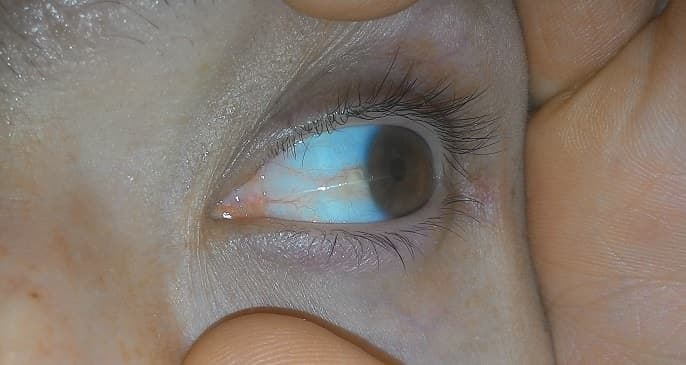 Пингвекула глаза: лечение