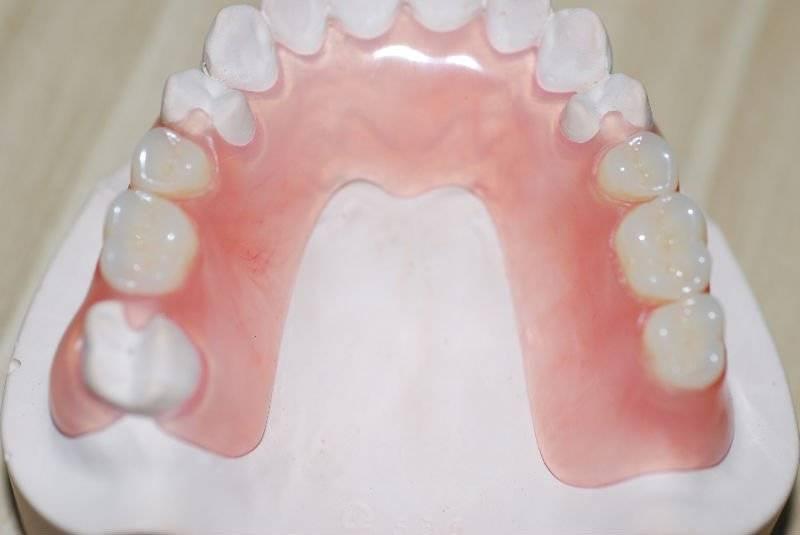 Нейлоновые зубные протезы: что это такое, как делается