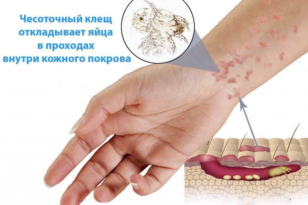 Симптомы и лечение чесоточного клеща у человека