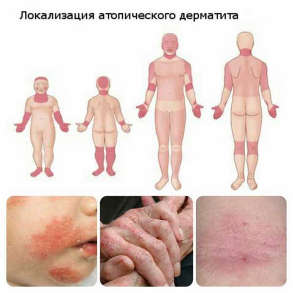 Как мы боролись с атопическим дерматитом (пищевая аллергия)