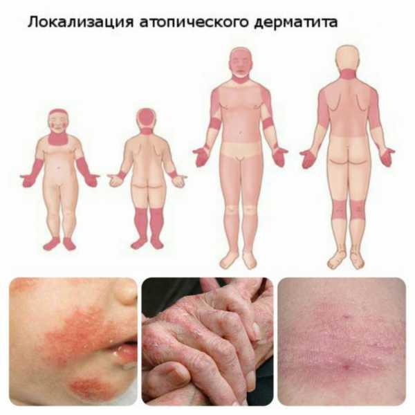 Таблетки снимающие зуд при дерматите