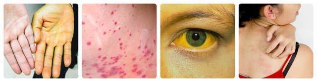 Высыпания и пятна на коже при заболеваниях печени