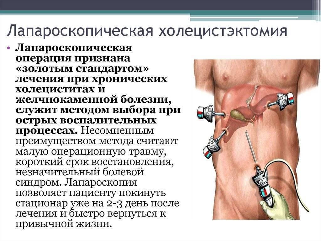 Физические упражнения после удаления желчного пузыря — лапароскопия. диета и физические нагрузки после операции по удалению желчного пузыря