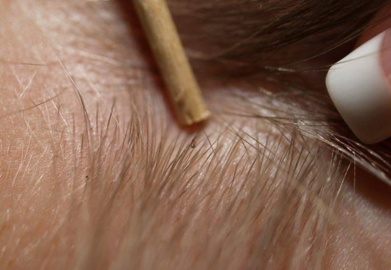 Как убрать из волос гниды - wikihow