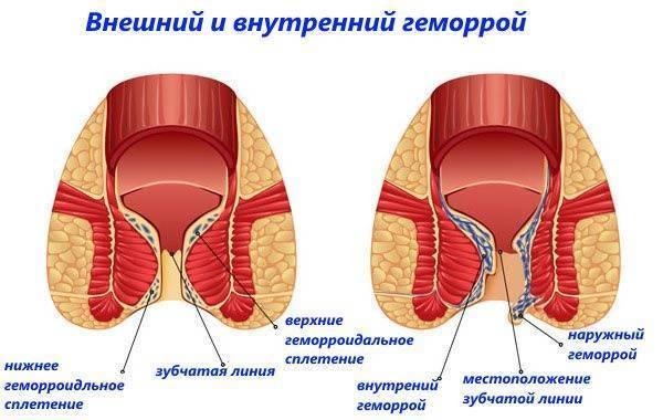 болезнь внутренний геморрой