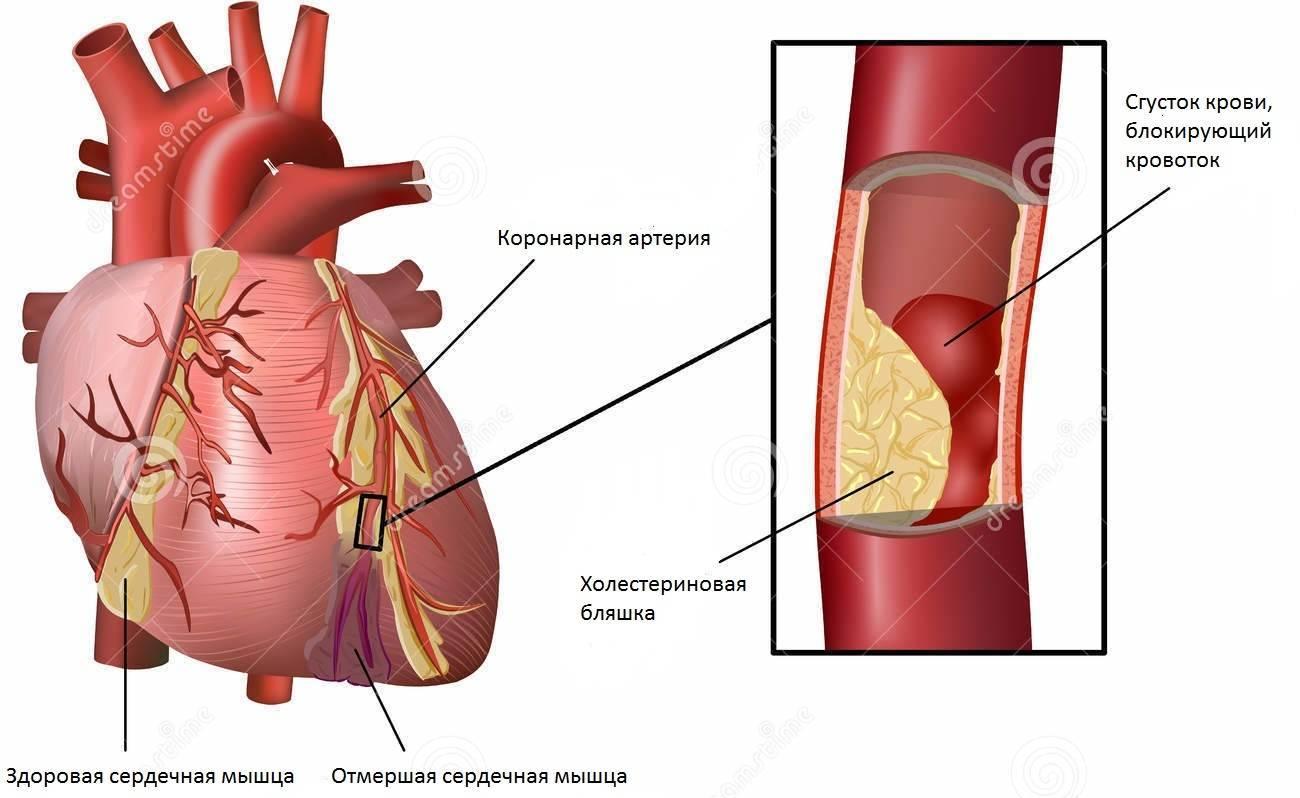 Что такое атеросклероз аорты венечных артерий