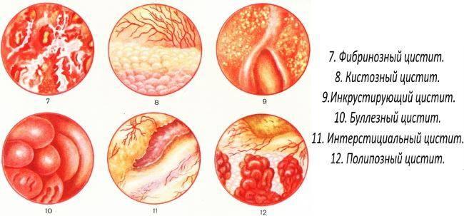 Лечение хронического цистита у женщин: препараты и народные средства. причины и последствия хронического цистита у женщин