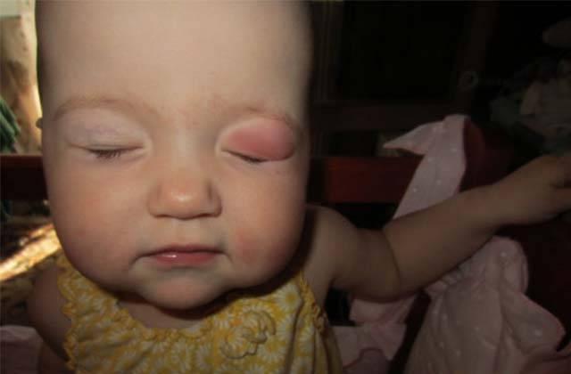 опухло верхнее веко у новорожденного