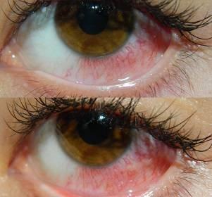 Симптомы и лечение при химических ожогах глаз