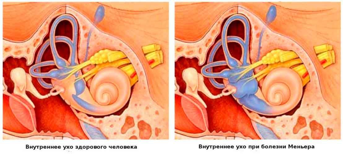 Болезнь меньера (синдром меньера). причины, симптомы и диагностика