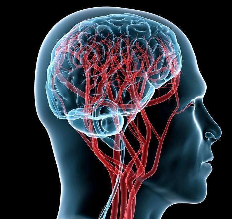 атеросклероз церебральных артерий
