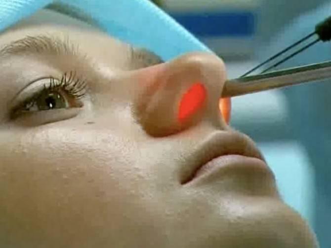 прижигание капилляров в носу