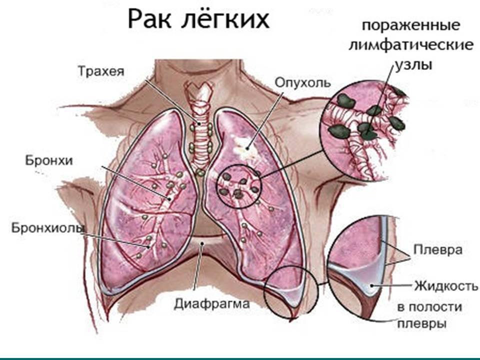 Рак трахеи: почему этот тип онкологии особенно опасен?
