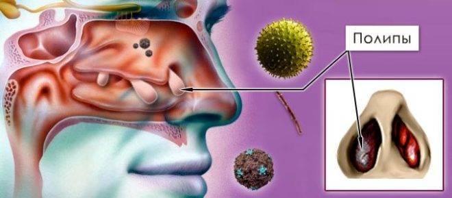Катаральный синусит: характер течения, особенности и варианты лечения