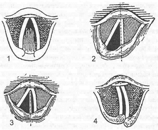 паралич гортани