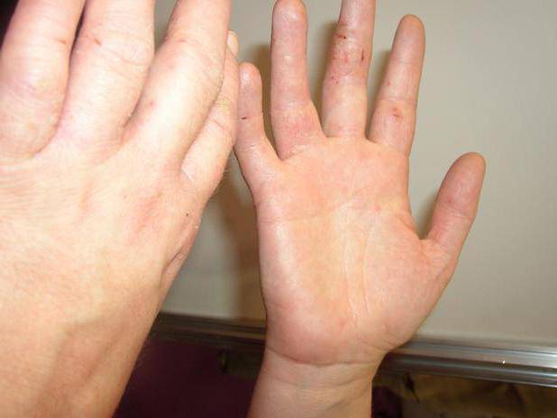 Дерматит у ребенка на руках