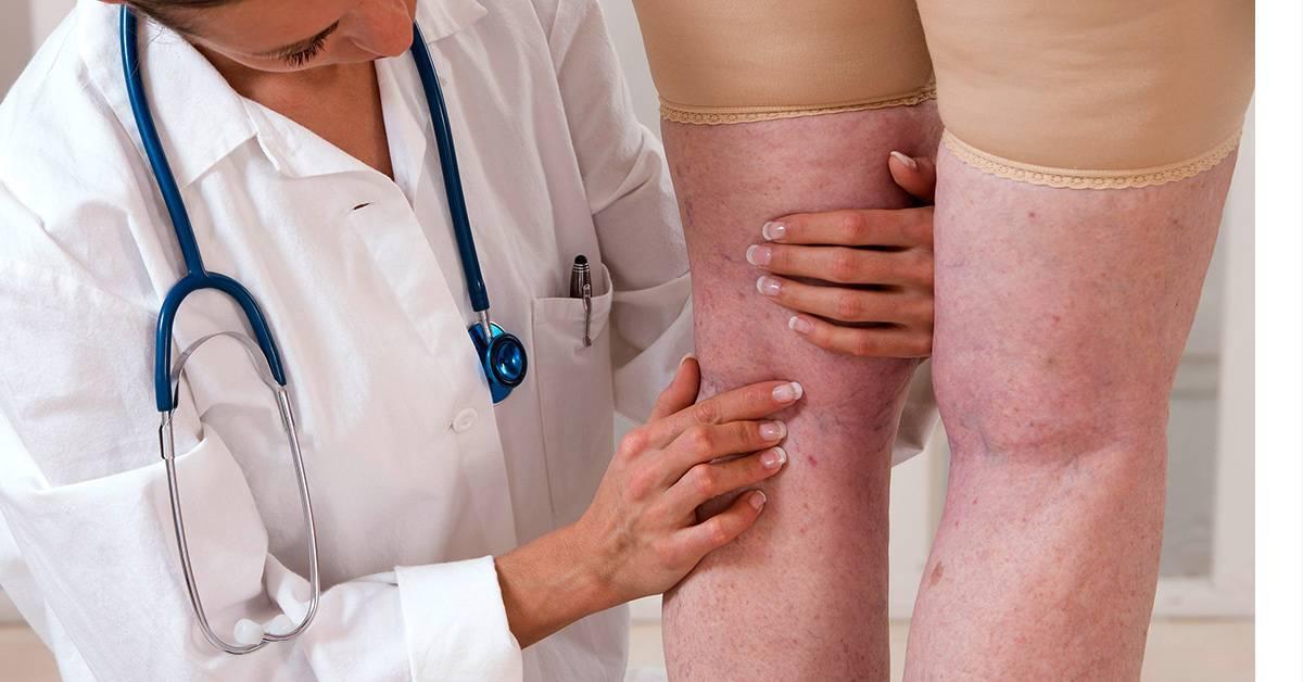 Атеросклероз сосудов головного мозга – симптомы, лечение, профилактика. что такое атеросклероз?