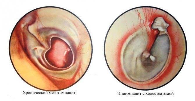 Выделения из уха: гной (гнойные), коричневые, желтые