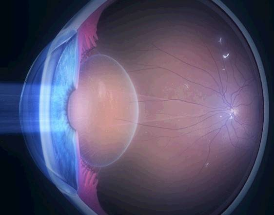 Аномалии рефракции глаза