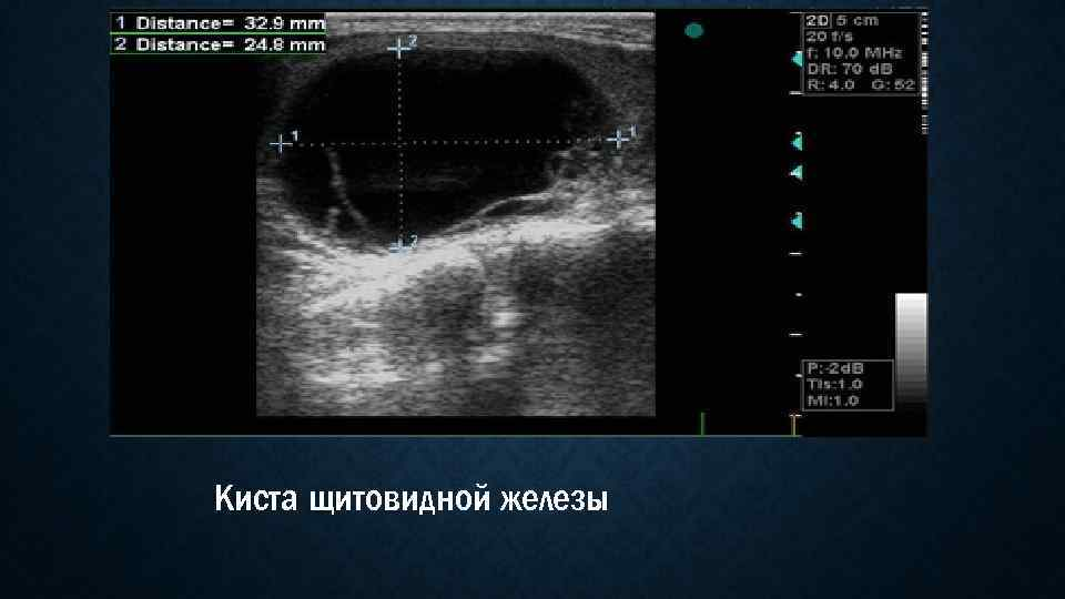 кистозно солидное образование щитовидной железы