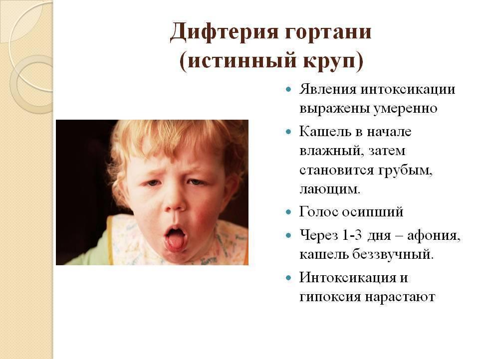 Ложный круп у детей: симптомы и лечение, первая помощь, что делать