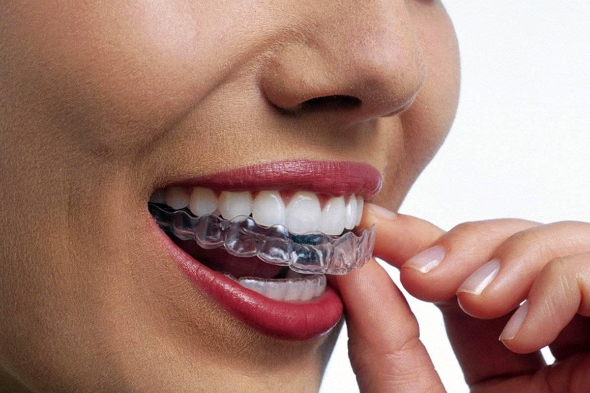 Что важно знать про капы для домашнего отбеливания зубов?