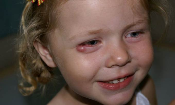 Что делать, если у ребенка на верхнем веке халязион: эффективные способы лечения