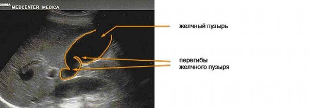 фиксированный перегиб желчного пузыря