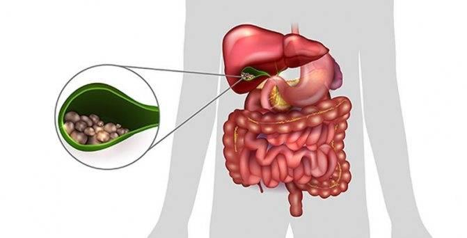 Заболевание панкреатит холецистит