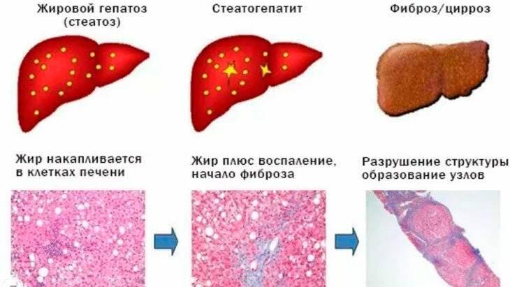 гепатоз 1 степени что это такое