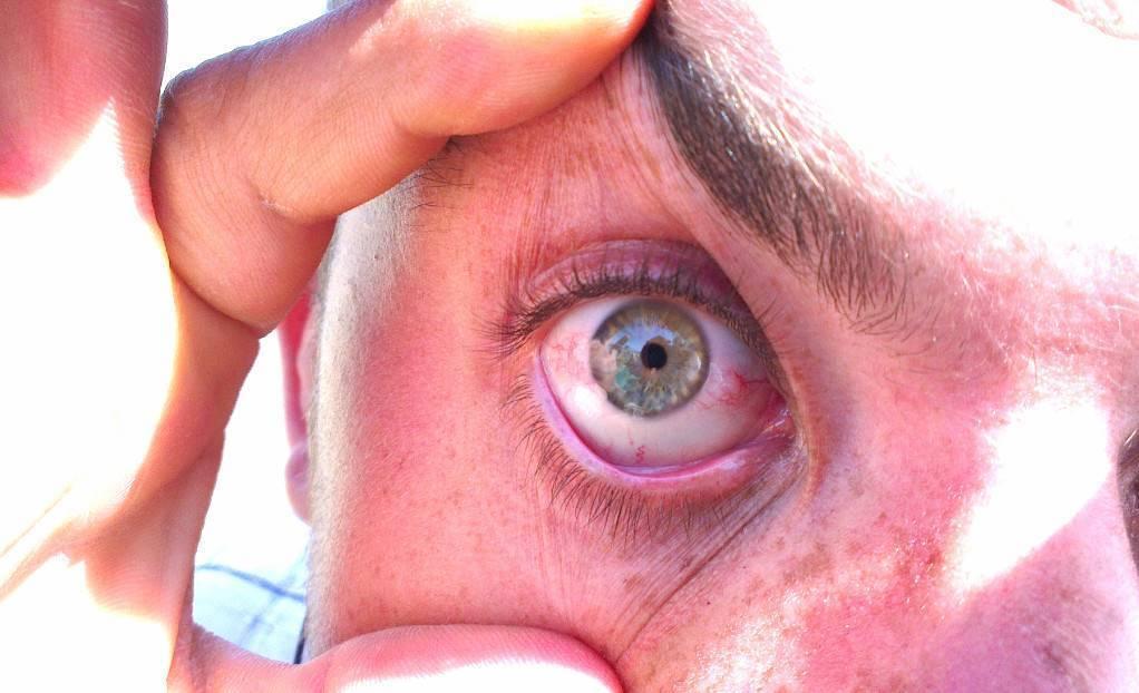 повреждение сетчатки глаза симптомы