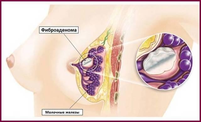 Лечение народными средствами фиброму молочной железы