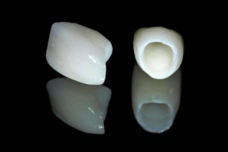 Какую коронку выбрать: керамическую или циркониевую