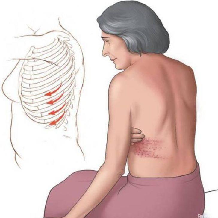 Невралгия под лопаткой симптомы и лечение