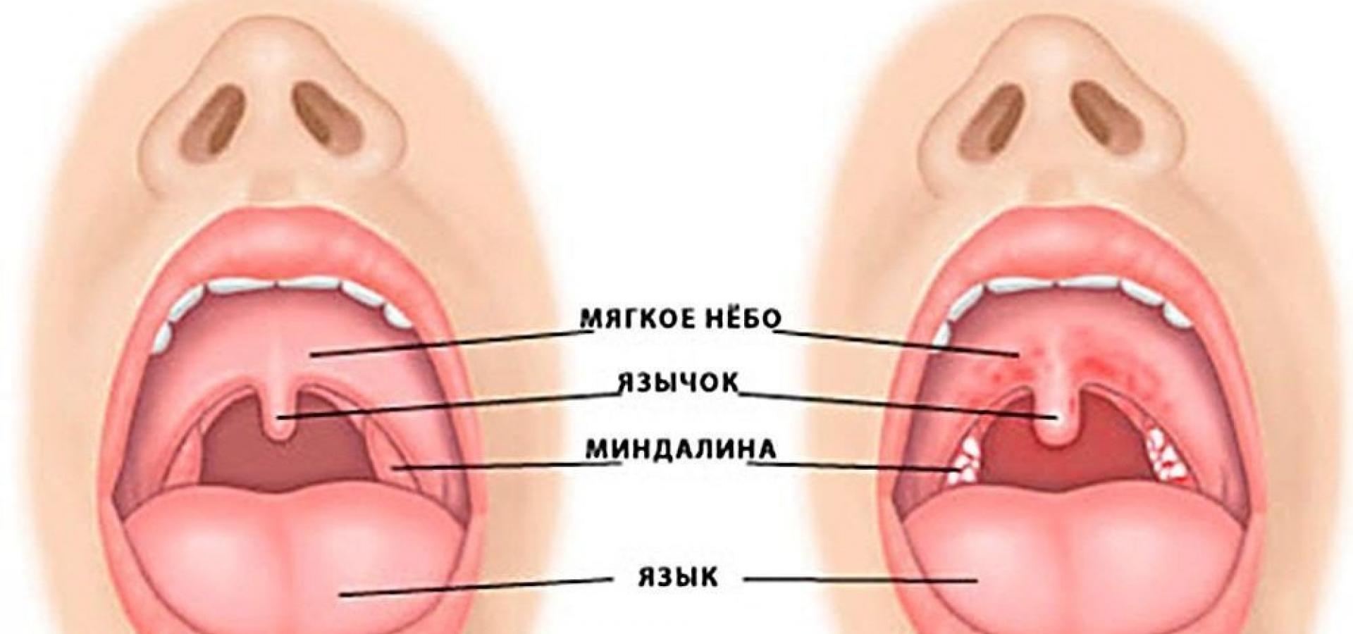 Температура и красное горло у грудничка
