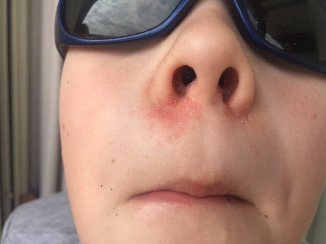 герпес на носу у ребенка