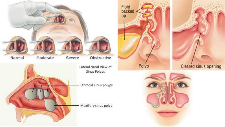 Полипы в носу не только мешают нормально дышать, но и ухудшают слух