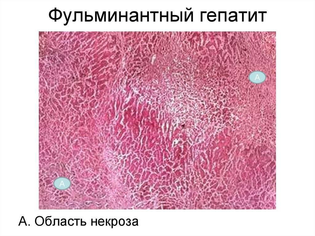 Фульминантный вирусный гепатит - симптомы болезни, профилактика и лечение фульминантного вирусного гепатита, причины заболевания и его диагностика на eurolab