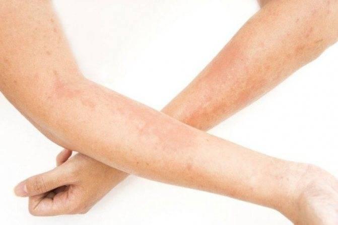 Лечение солнечного дерматита