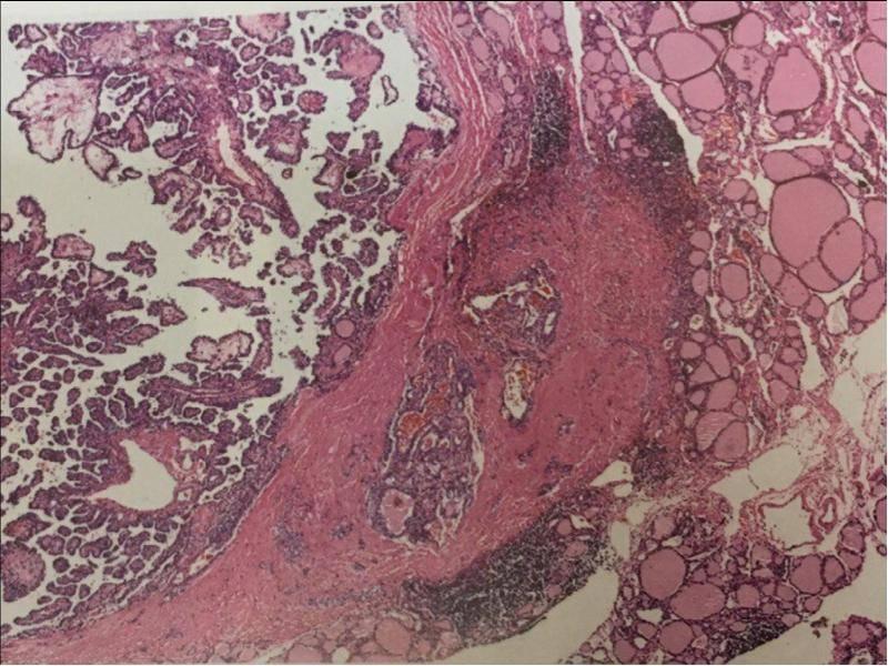 фолликулярный рак щитовидной железы прогноз