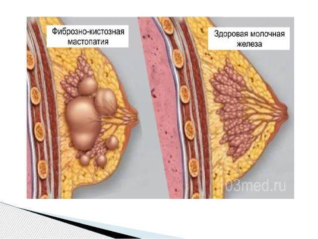 Мастопатия - симптомы и лечение