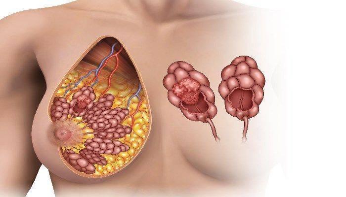 почему болит грудь по бокам