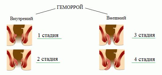 геморрой стадии симптомы