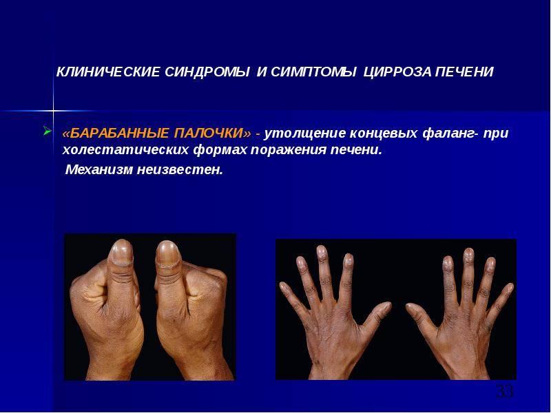 Первые признаки и симптомы цирроза печени