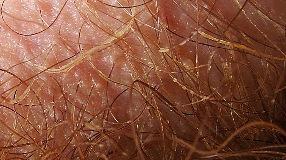 Псориаз на половых органах: причины, симптомы и лечение