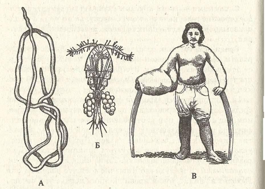 Жизненный цикл червя ришта, симптоматика и лечение дракункулеза