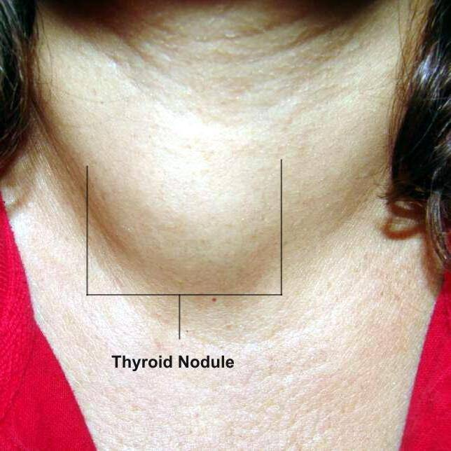 щитовидка последствия